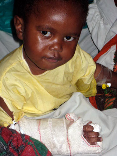 Child with hand surgery